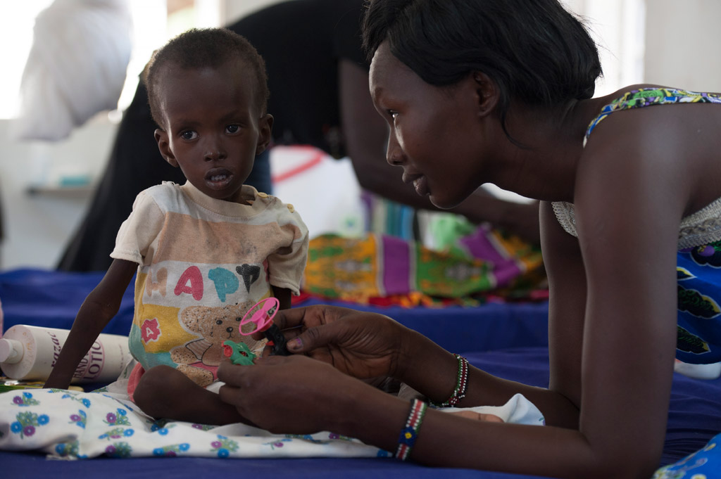 Two-year-old, Kuot is being treated for severe acute malnutrition, at the UNICEF-supported Al-Shabbah Children's Hospital, in Juba, South Sudan. Photo: UNICEF/Sebastian Rich