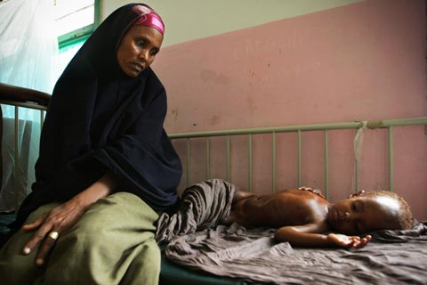 A mother looks at her malnourished and dehydrated child lying on a bed in Banadir Hospital in the Somali capital Mogadishu