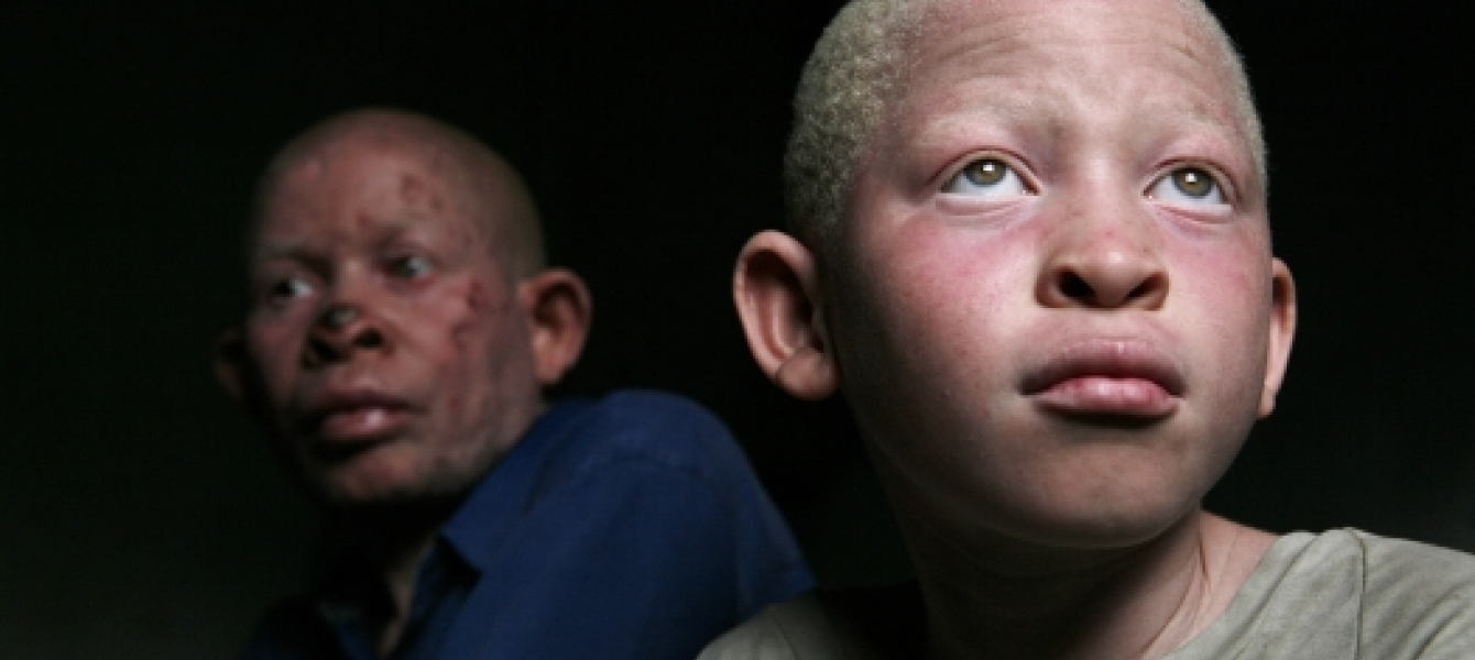 Ending albino persecution in Africa | Africa Renewal