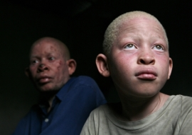 A child living with albinism and his father in Dar es Salaam, Tanzania. Photo: Panos/ Dieter Telemans